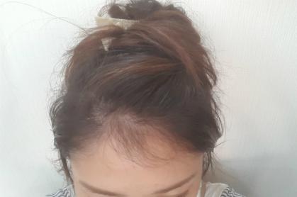 産後1年半と育毛剤